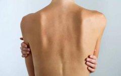 后背发凉是心理还是身体原因 后背发凉的调理方法