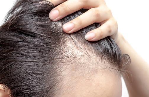 防止掉头发除了食疗还要做到这几点