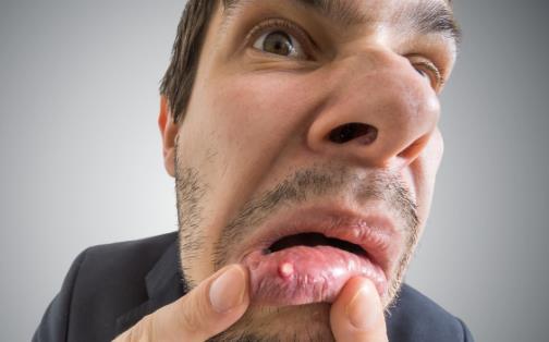 精神压力大易导致口腔溃疡 中医偏方可治疗口腔溃疡