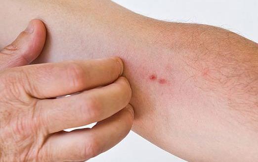 老人皮肤保护能力下降不耐痒 老人皮肤瘙痒的预防