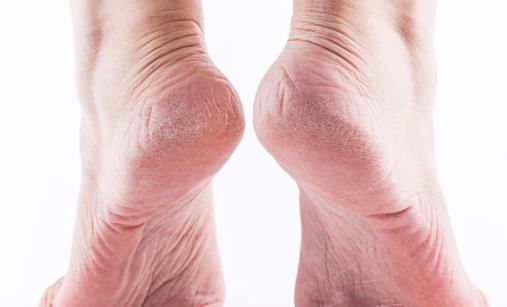 脚气为什么偏爱夏天 治疗脚气有哪些偏方