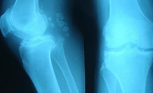 骨刺容易出现在这4个部位 骨刺患者不要随便做按摩