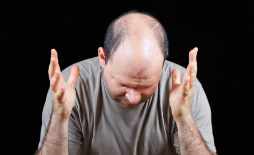 脱发或是疾病引起 防止脱发的最佳六大方法