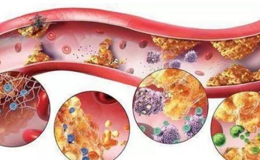 要想拒绝高血脂打扰降脂法大推荐 日常降脂食物盘点