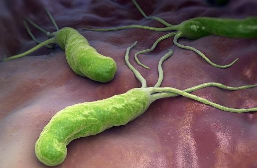 体内有幽门螺杆菌,身体往往有五个标志,占的越多,胃癌