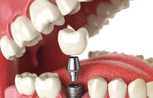 种一口牙相当于买辆宝马 种植牙的有关护理事项