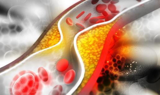 了解血管系统远离血管疾病 让血管恢复青春的保鲜剂
