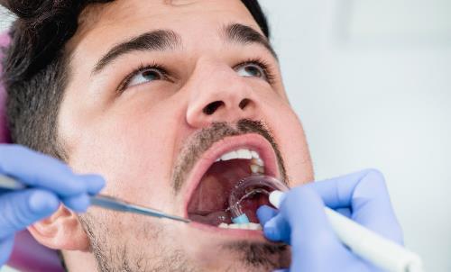 为了美白反而伤害牙齿?洗牙不是你想得那样!