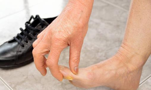 脚麻非小事也许是血管塞住 双脚血管疾病高危险人群